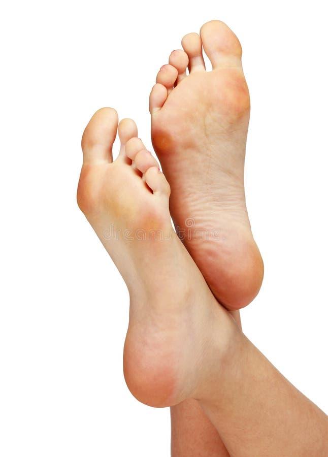 Θηλυκά πόδια με τα calluses στοκ εικόνα