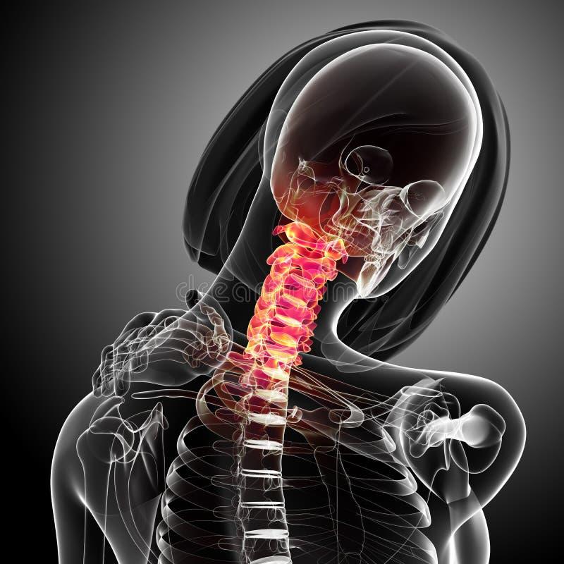 Θηλυκός πόνος λαιμών ελεύθερη απεικόνιση δικαιώματος