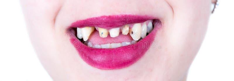 Θηλυκό χαμόγελο χωρίς τα δόντια στοκ εικόνες