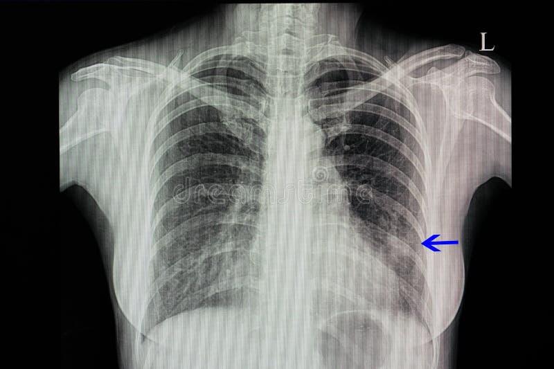 θωρακική ακτίνα X ενός ασθενή με την πνευμονία στοκ φωτογραφία