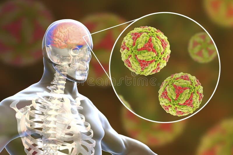 Ιαπωνική εγκεφαλίτιδα Β, ιατρική έννοια απεικόνιση αποθεμάτων