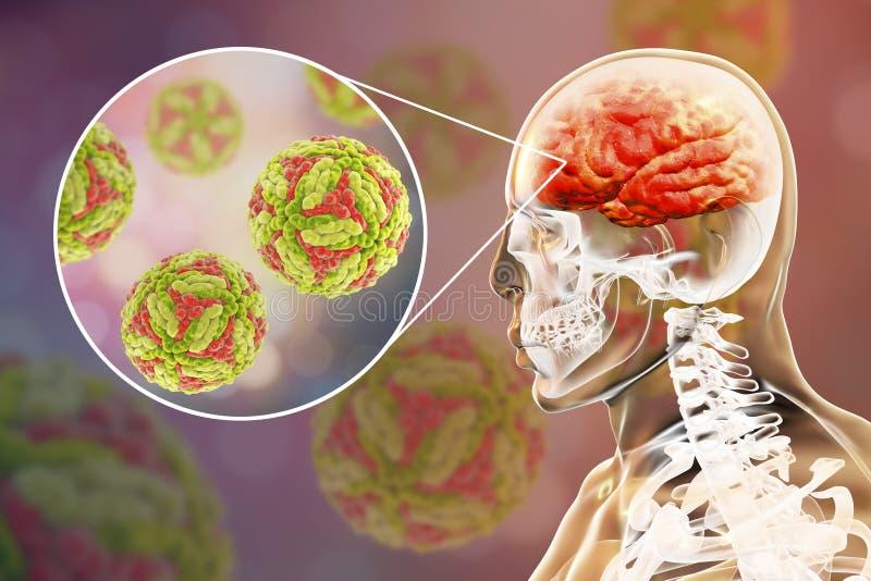 Ιαπωνική εγκεφαλίτιδα Β, ιατρική έννοια διανυσματική απεικόνιση