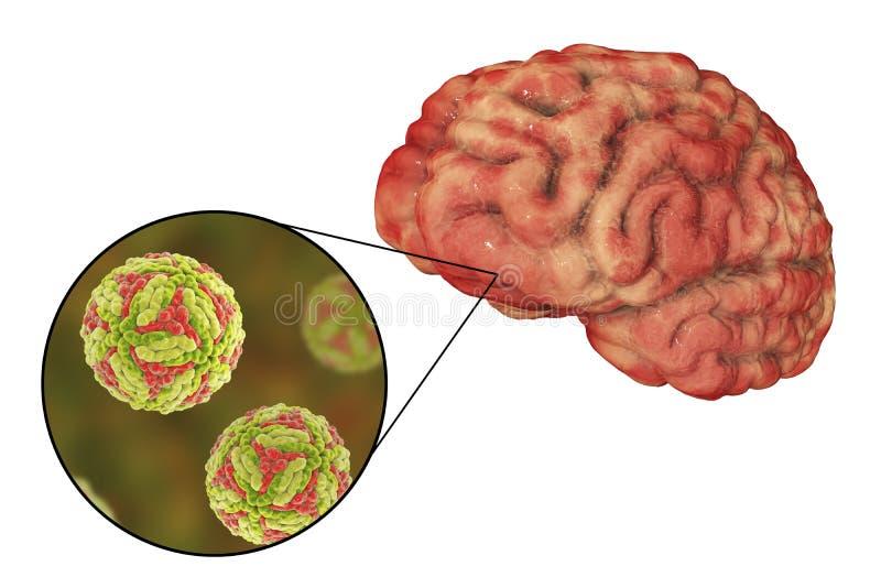 Ιαπωνική εγκεφαλίτιδα Β, ιατρική έννοια ελεύθερη απεικόνιση δικαιώματος