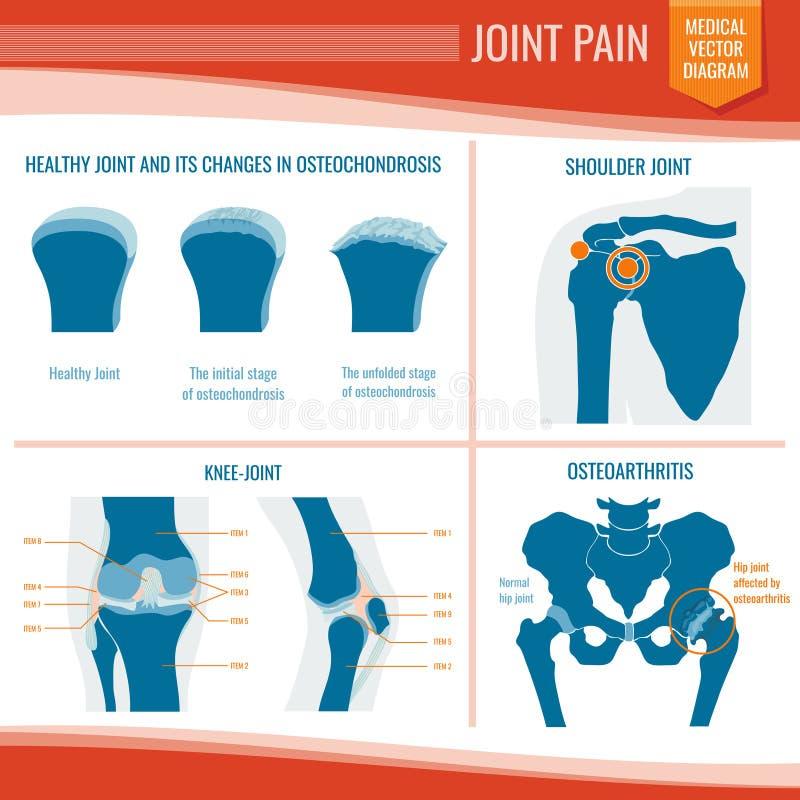 Ιατρικός διανυσματικός infographic πόνου οστεοαρθρίτιδας και ρευματισμού κοινός ελεύθερη απεικόνιση δικαιώματος