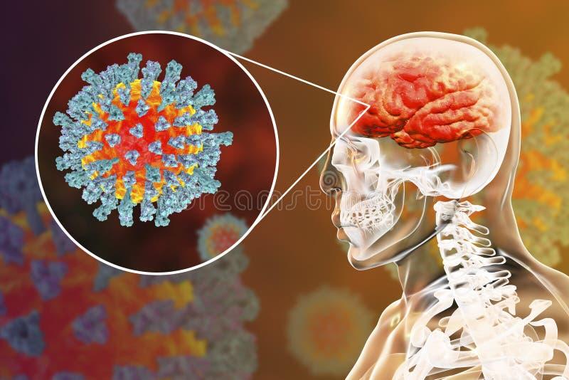 Ιλαρά-προκληθείσα εγκεφαλίτιδα, ιατρική έννοια απεικόνιση αποθεμάτων
