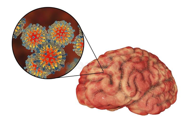 Ιλαρά-προκληθείσα εγκεφαλίτιδα, ιατρική έννοια διανυσματική απεικόνιση