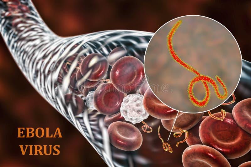 Ιοί Ebola στο αίμα ενός ασθενή με το hemorrhagic πυρετό Ebola διανυσματική απεικόνιση