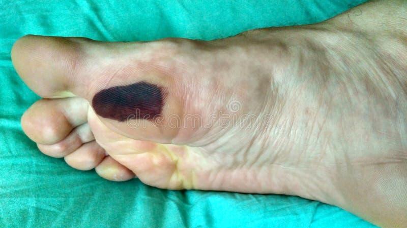Κάλος με το μώλωπα Τριμμένο πόδι στοκ φωτογραφίες με δικαίωμα ελεύθερης χρήσης