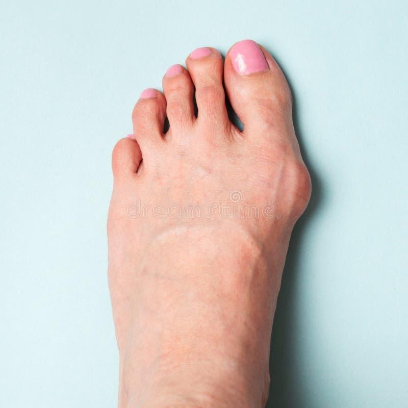 Κάλος στο πόδι Παραμόρφωση Valgus από τα στενά παπούτσια στοκ φωτογραφίες με δικαίωμα ελεύθερης χρήσης