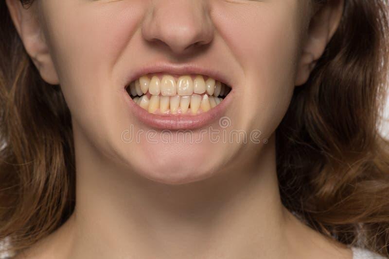 Κίτρινος είναι ούτε καν και στριμμένα δόντια μιας νέας γυναίκας στοκ φωτογραφία με δικαίωμα ελεύθερης χρήσης