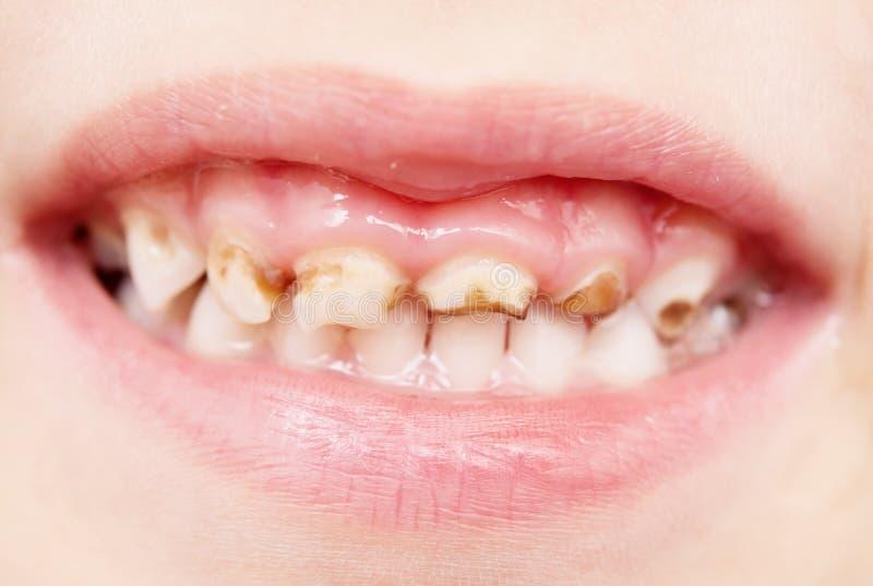 κακά δόντια στοκ εικόνες με δικαίωμα ελεύθερης χρήσης