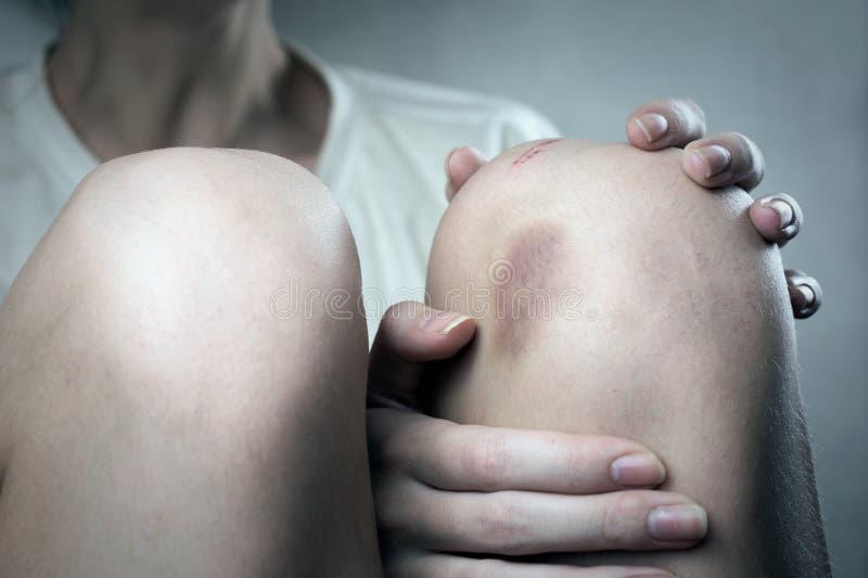 Κακομεταχειρισμένη γυναίκα στοκ εικόνες με δικαίωμα ελεύθερης χρήσης