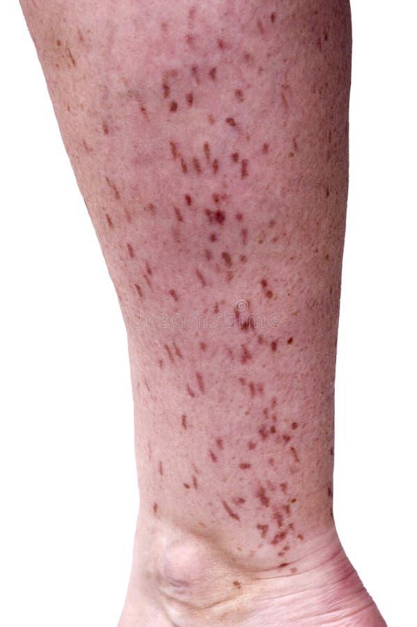 κακό φουσκάλα σημαδεμένο αφαίρεση δέρμα λέιζερ τριχώματος στοκ εικόνα με δικαίωμα ελεύθερης χρήσης