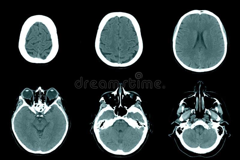 Κανονικό κεφάλι στις ανιχνεύσεις CT στοκ εικόνες με δικαίωμα ελεύθερης χρήσης