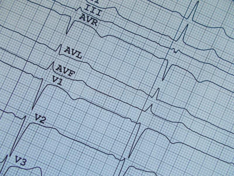 Καρδιά σφυγμού ηλεκτροκαρδιογραφημάτων στοκ φωτογραφίες