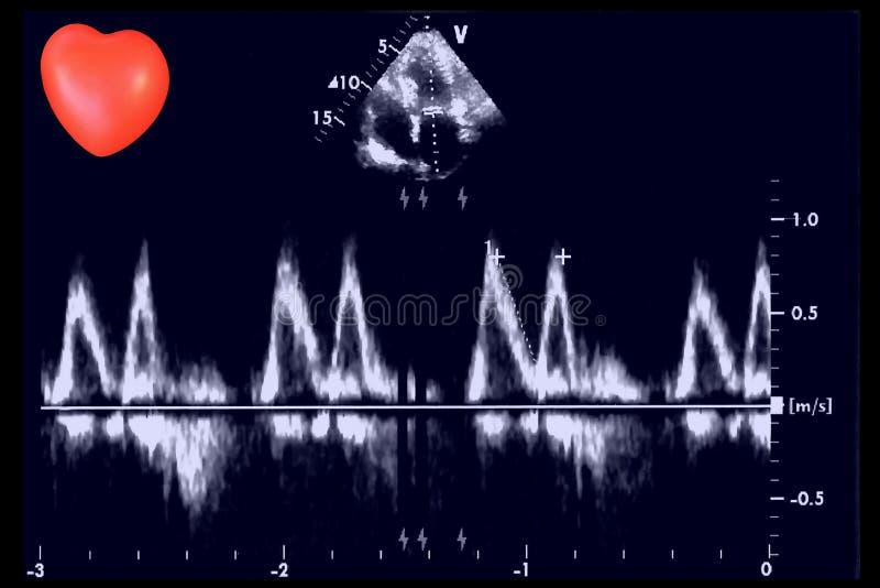 Καρδιακές εικόνες υπερήχου και μικρή καρδιά Ηχώ Doppler στοκ εικόνα
