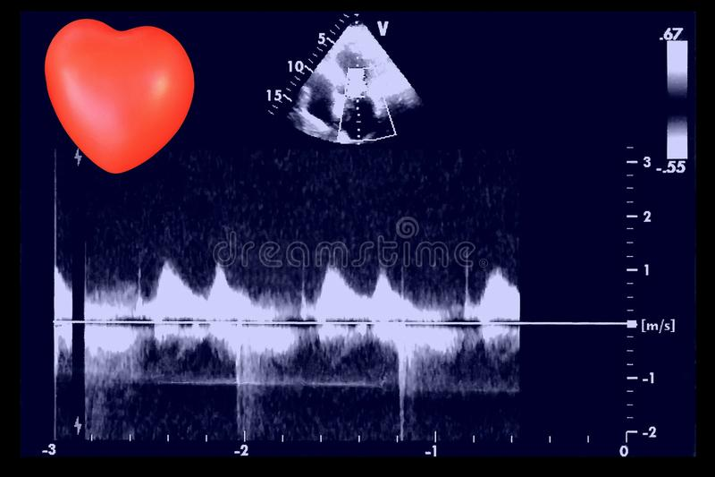 Καρδιακές εικόνες υπερήχου και μικρή καρδιά Ηχώ Doppler στοκ φωτογραφίες με δικαίωμα ελεύθερης χρήσης