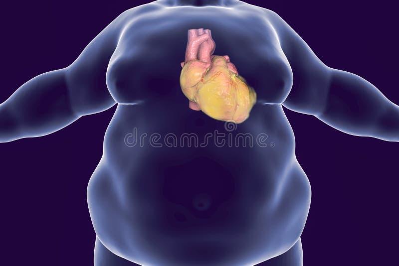 Καρδιακές παθήσεις στο πρόσωπο παχυσαρκίας διανυσματική απεικόνιση