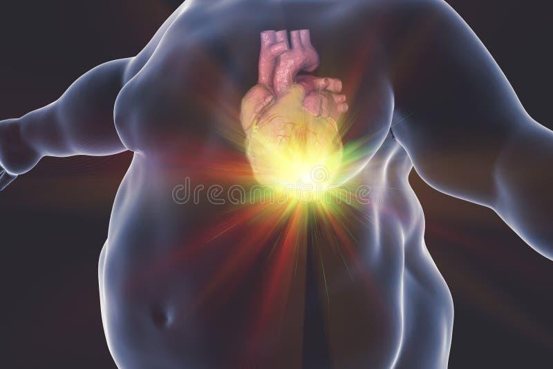 Καρδιακές παθήσεις στο πρόσωπο παχυσαρκίας απεικόνιση αποθεμάτων