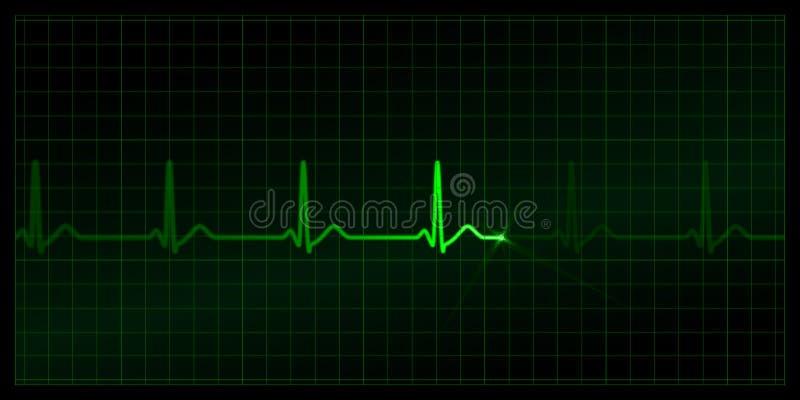 καρδιογράφημα απεικόνιση αποθεμάτων