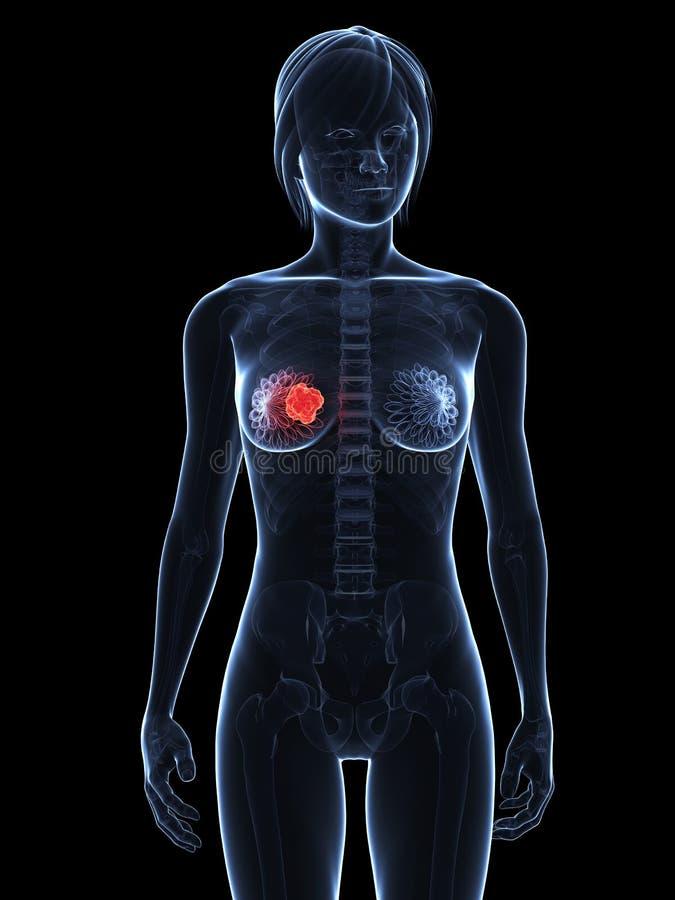 καρκίνος του μαστού ελεύθερη απεικόνιση δικαιώματος