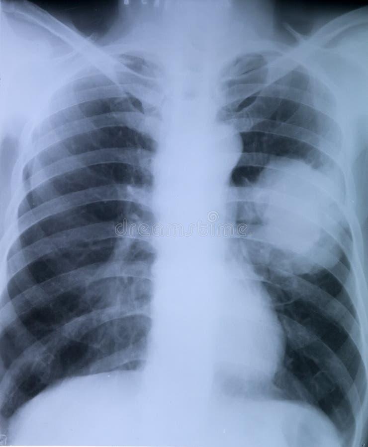 Καρκίνος του πνεύμονα: Εικόνα ακτίνας X του στήθους στοκ εικόνες