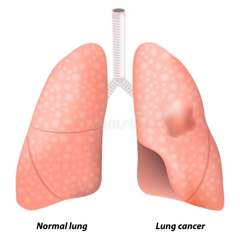 Καρκίνος του πνεύμονα διανυσματική απεικόνιση