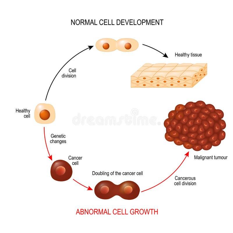 Καρκινικό κύτταρο απεικόνιση που παρουσιάζει ανάπτυξη ασθενειών καρκίνου διανυσματική απεικόνιση