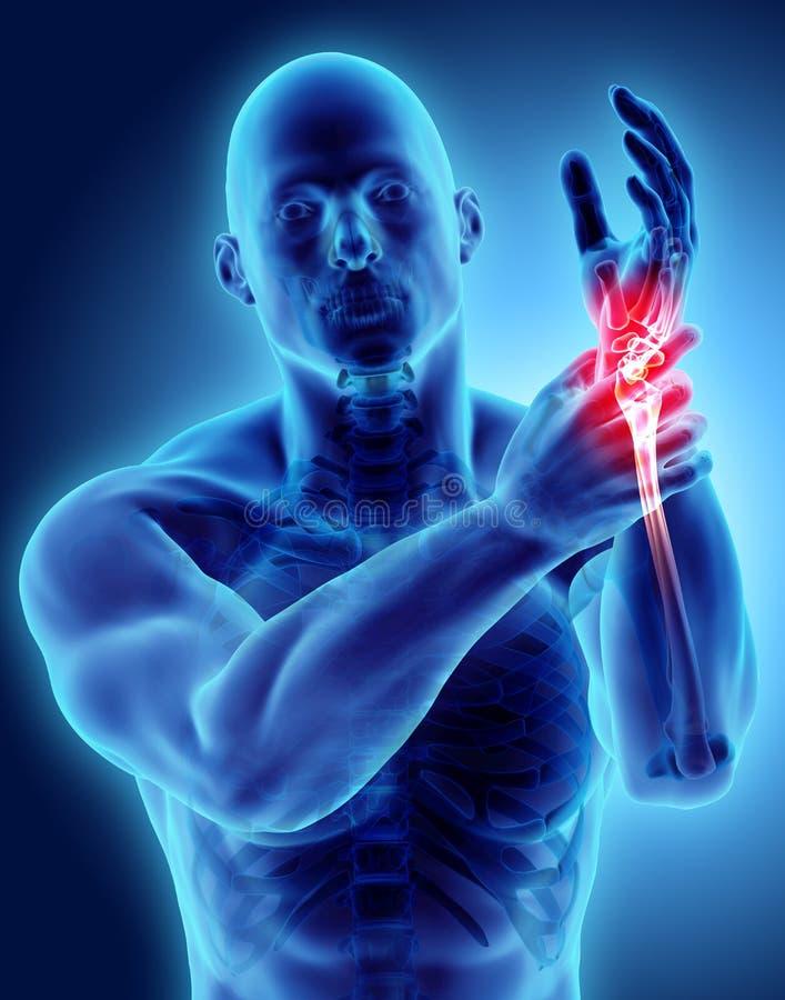 Καρπός επίπονος - ακτίνα X σκελετών απεικόνιση αποθεμάτων