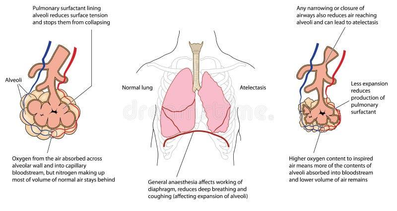 Καταρρεσμένος πνεύμονας διανυσματική απεικόνιση