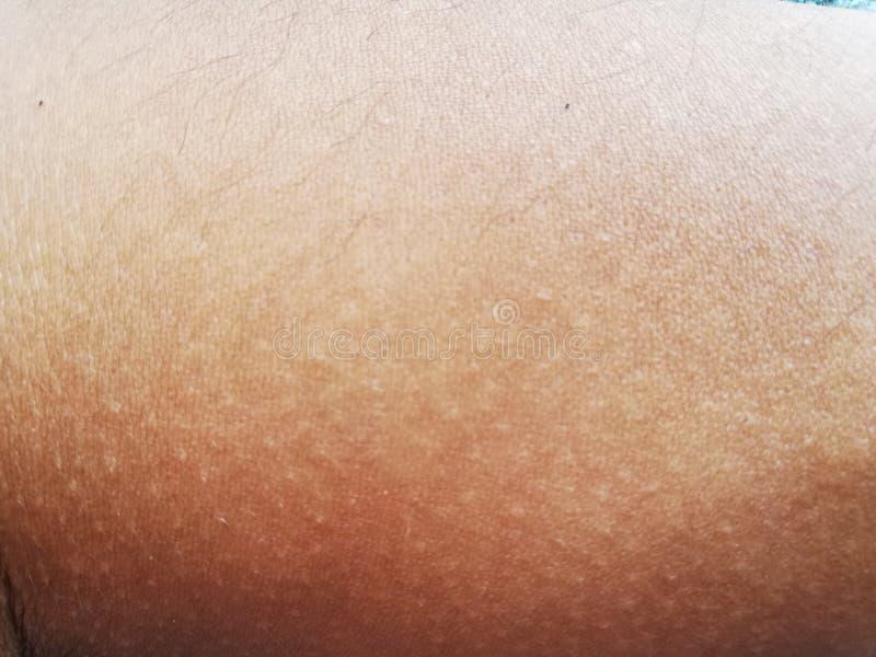 Ανθρώπινη σύσταση δερμάτων στοκ φωτογραφίες