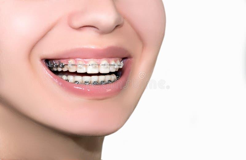Κεραμικά οδοντικά δόντια στηριγμάτων Θηλυκό χαμόγελο κινηματογραφήσεων σε πρώτο πλάνο στοκ εικόνα