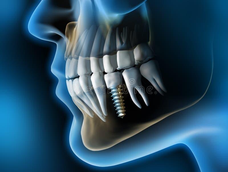 Κεφάλι και σαγόνι με ένα οδοντικό μόσχευμα ενάντια σε ένα μπλε σκηνικό απεικόνιση αποθεμάτων