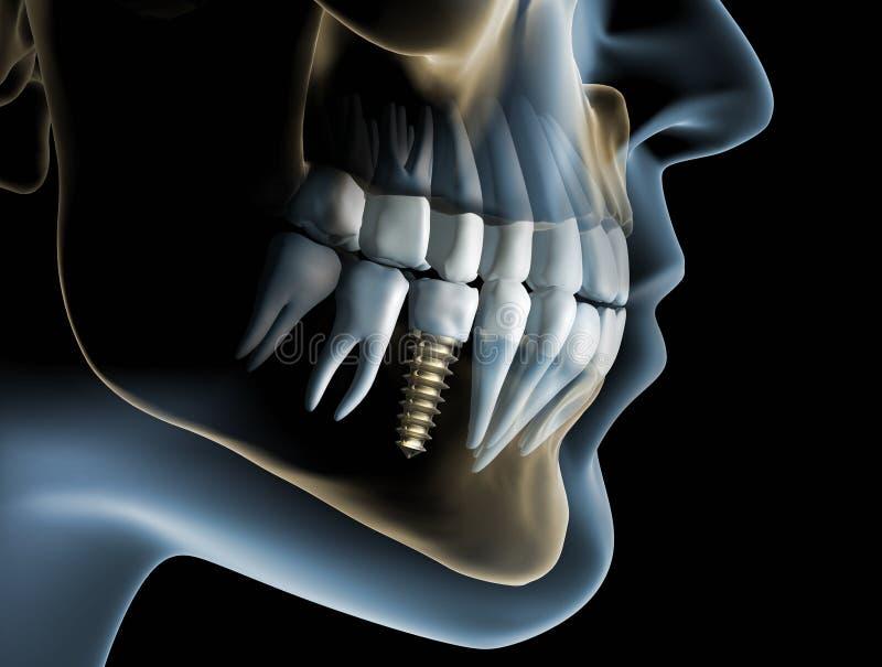 Κεφάλι και σαγόνι με ένα οδοντικό μόσχευμα διανυσματική απεικόνιση