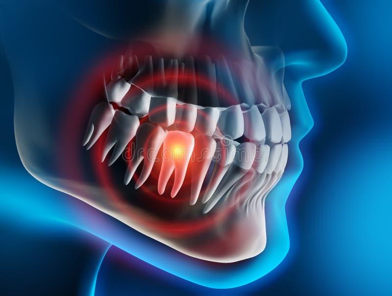 Κεφάλι και σαγόνι με τον πόνο σε ένα δόντι ενάντια σε ένα μπλε σκηνικό διανυσματική απεικόνιση