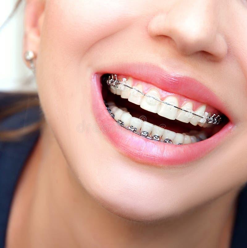 Κινηματογράφηση σε πρώτο πλάνο κεραμική και στηρίγματα μετάλλων στα δόντια Όμορφο θηλυκό Smil στοκ εικόνα με δικαίωμα ελεύθερης χρήσης