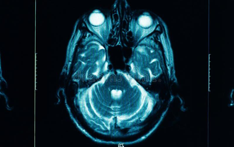 Κινηματογράφηση σε πρώτο πλάνο μιας ανίχνευσης CT στοκ εικόνα με δικαίωμα ελεύθερης χρήσης