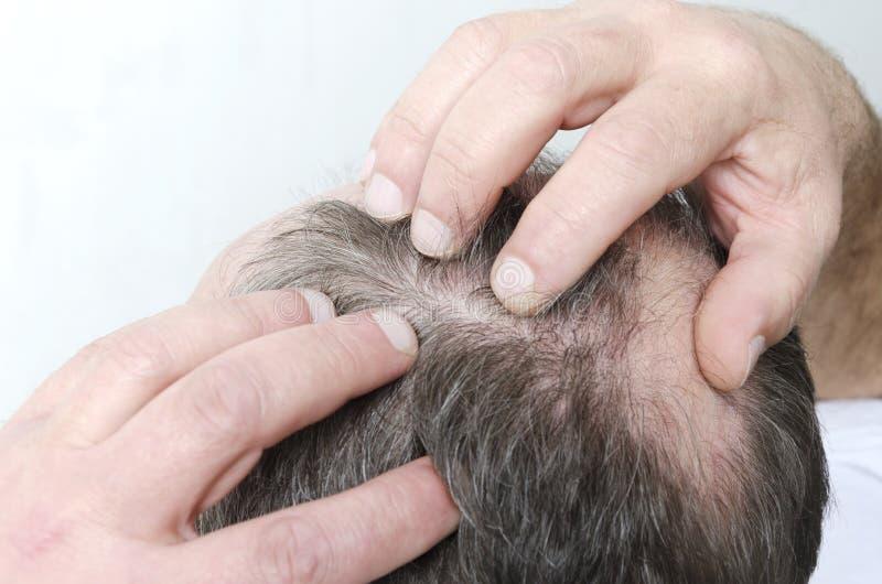Κινηματογράφηση σε πρώτο πλάνο του φαλακρού κεφαλιού των ατόμων Άτομο που υποχωρώντας hairline του στοκ εικόνα