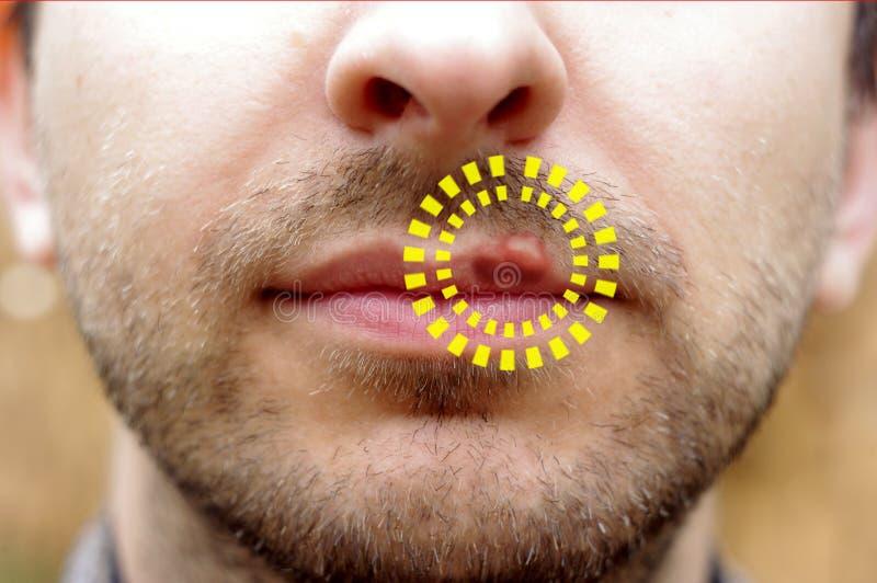 Κινηματογράφηση σε πρώτο πλάνο ενός επώδυνου έρπη ιών κοινού κρύου στοκ φωτογραφία