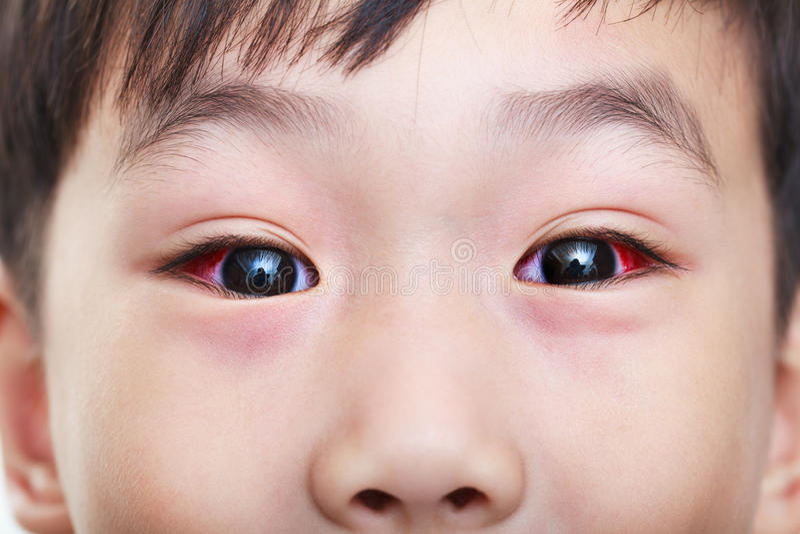 Κινηματογράφηση σε πρώτο πλάνο της χρόνιας επιπεφυκίτιδας με μια κόκκινη ίριδα στοκ εικόνες