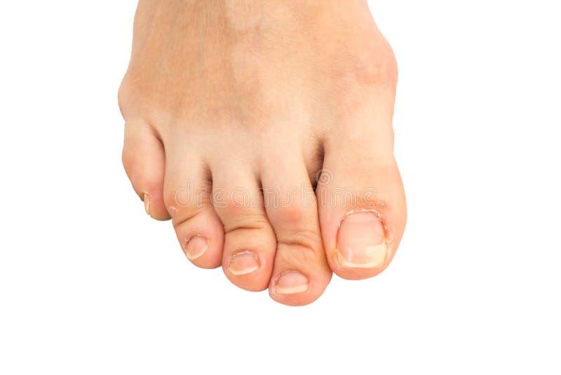 Κινηματογράφηση σε πρώτο πλάνο του ανθρώπινου ποδιού με ένα ραγισμένο και καρφί toe αποφλοίωσης στο μεγαλύτερο toe στοκ φωτογραφία με δικαίωμα ελεύθερης χρήσης