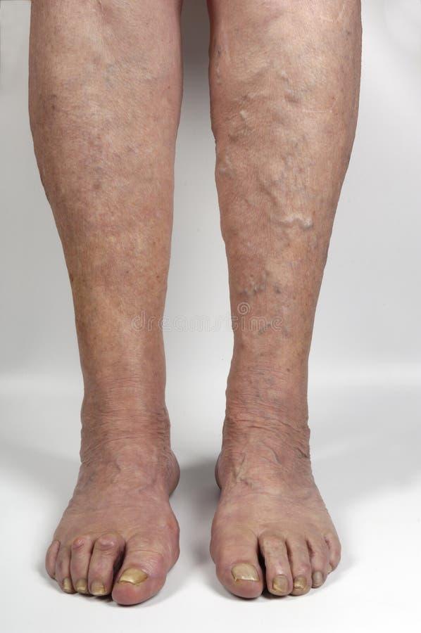 Κιρσώδεις φλέβες στο πόδι μιας γυναίκας, στοκ εικόνες με δικαίωμα ελεύθερης χρήσης