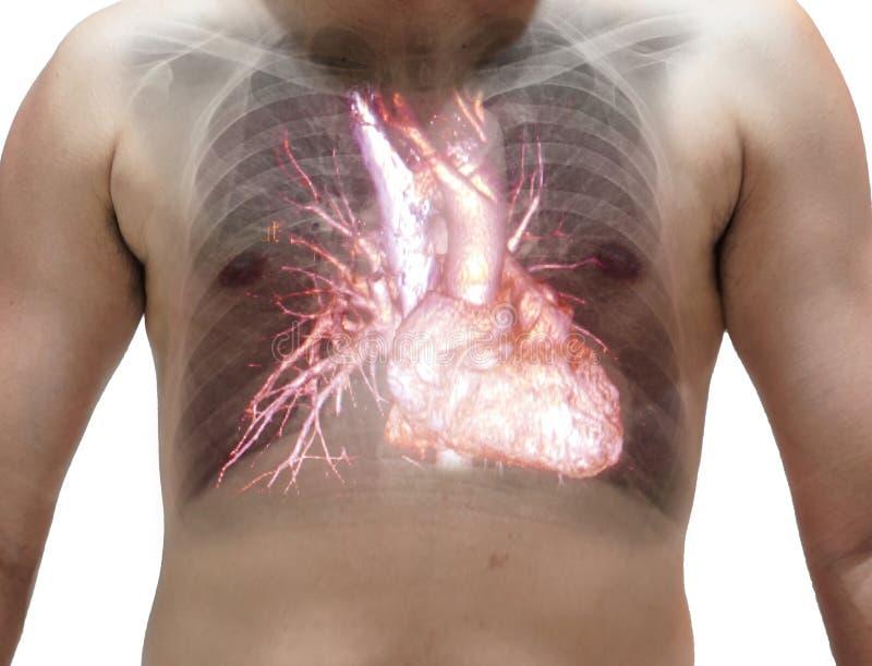 Κλείστε επάνω τη θωρακική ακτίνα X που παρουσιάζει καρδιά στην πλευρά στοκ εικόνες