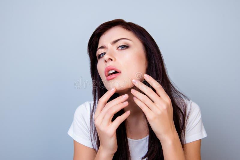Κλείστε επάνω τη φωτογραφία του νέου κοριτσιού που συμπιέζει έξω ένα σπυράκι στο πηγούνι της που απομονώνεται στο γκρίζο αντίγραφ στοκ εικόνα