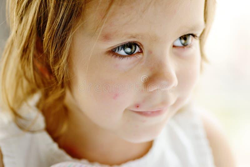 Κορίτσι μικρών παιδιών με τη φλυκταινώδη νόσο κοτόπουλου στοκ εικόνες με δικαίωμα ελεύθερης χρήσης