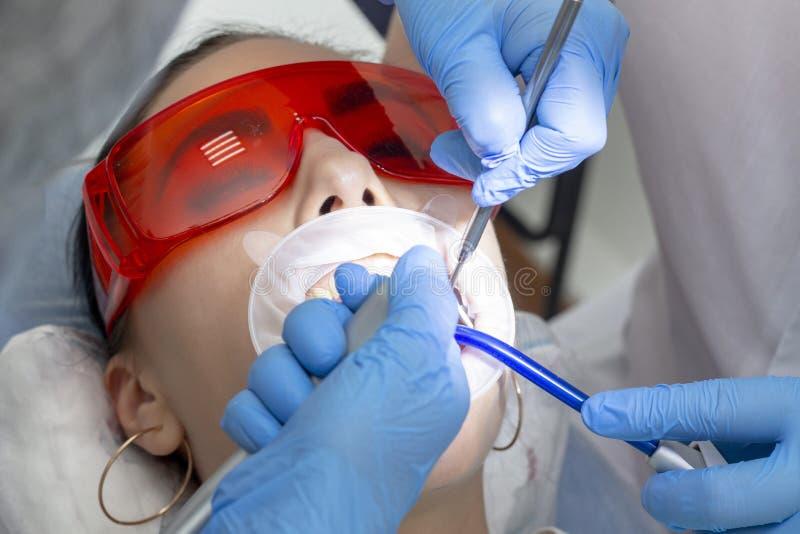 Κορίτσι στην εξέταση στην επεξεργασία οδοντιάτρων του τερηδονισμένου δοντιού ο γιατρός χρησιμοποιεί έναν καθρέφτη στη λαβή και μι στοκ εικόνες