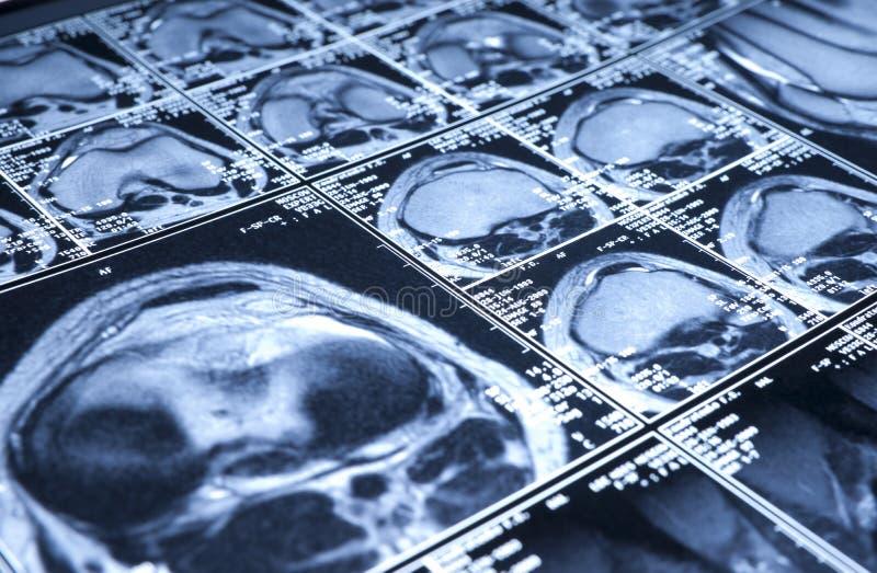 κορυφαία όψη mri γονάτων στοκ φωτογραφίες