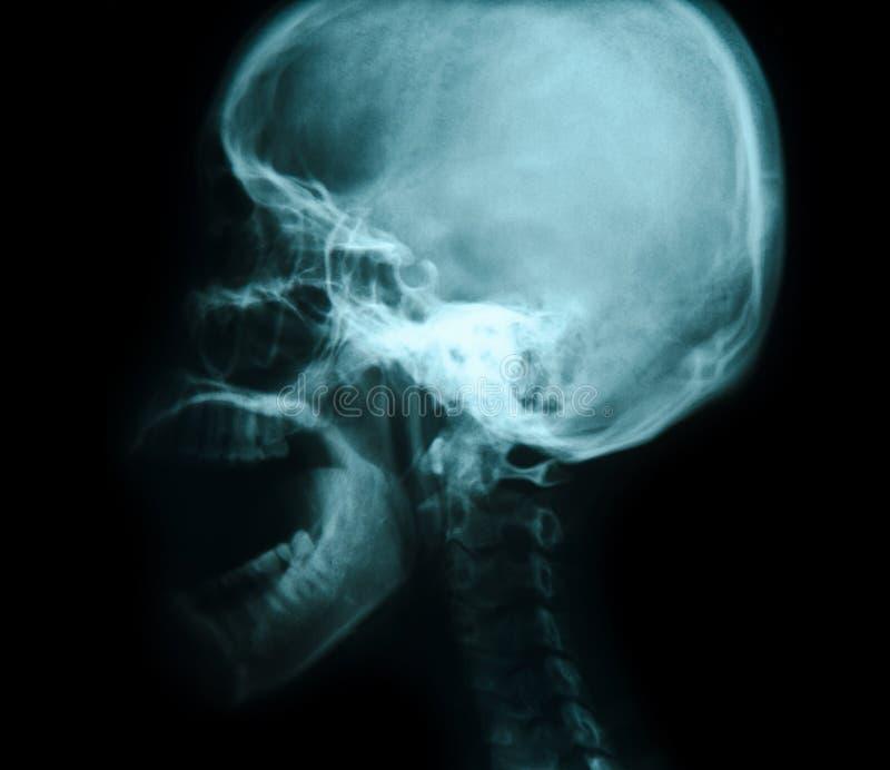 κρανίο Χ ακτίνων εικόνων στοκ φωτογραφία με δικαίωμα ελεύθερης χρήσης