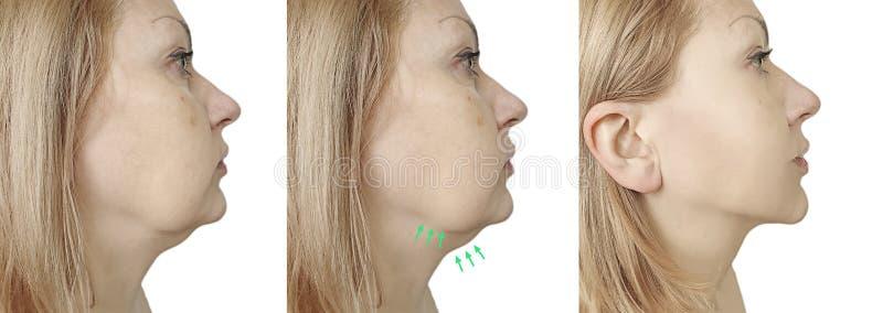 Κρεμώντας πρόβλημα πηγουνιών γυναικών διπλό πριν και μετά από την επεξεργασία διαδικασίας στοκ φωτογραφία με δικαίωμα ελεύθερης χρήσης
