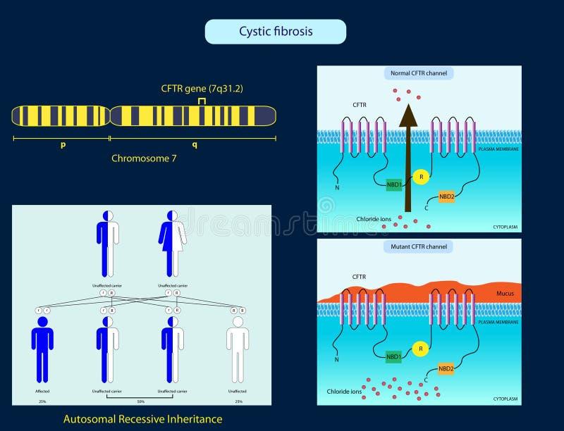Κυστική ίνωση απεικόνιση αποθεμάτων